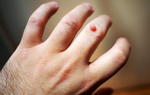 Skin Tags, Wart, Moles, Removal in Delhi, Laser Procedure