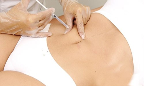 Mesotherapy and Liposuction Best Ways To Reduce Weight Fast