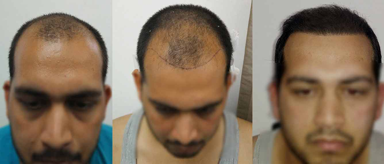 Direct Hair Transplant Procedure, Types, Risk, Advantages, and Cost