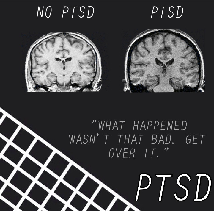 PTSD Brain Scan