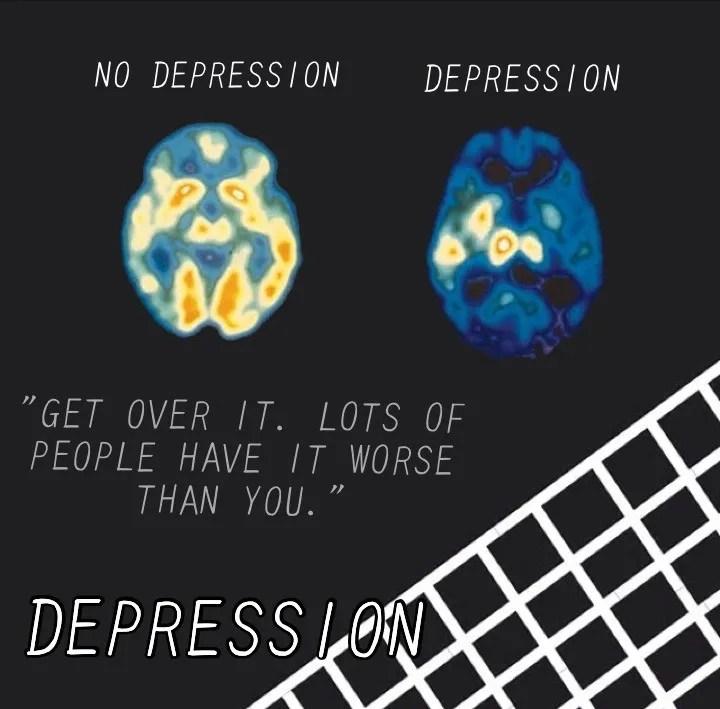 Depression Brain Scan