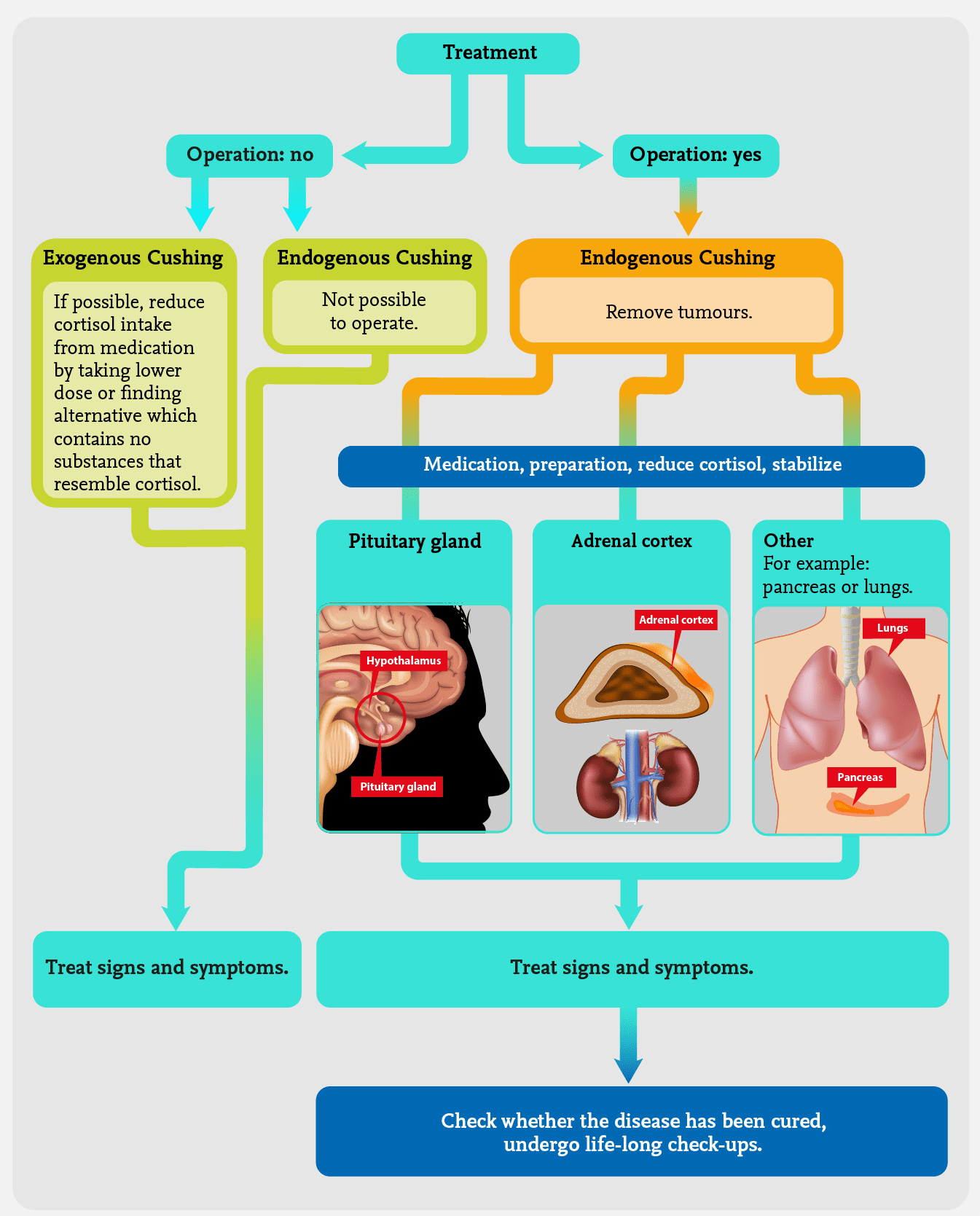 Cushing's Syndrome Infographic Adrenals Eu