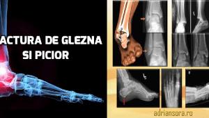 Fractura de gleznă și picior