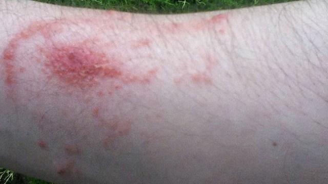 Dermatita de contact
