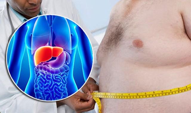 Antidotul ficatului gras –