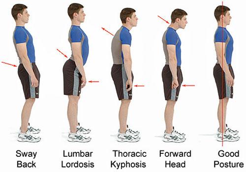 Cauzele defectelor de postură