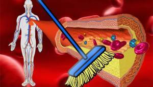 alimente care curăţă arterele