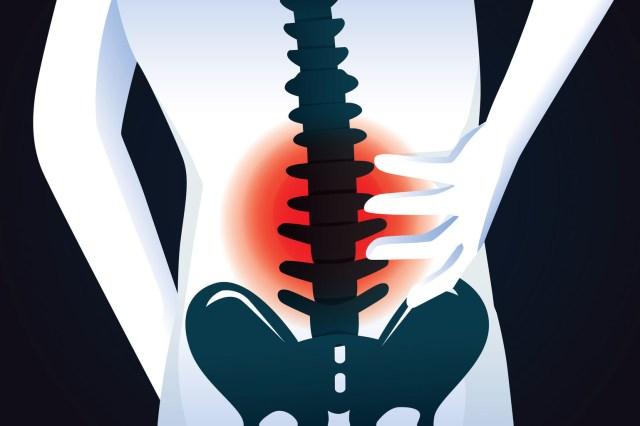 Remedii pentru durerile lombare