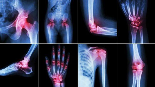 Remedii pentru dureri articulare,