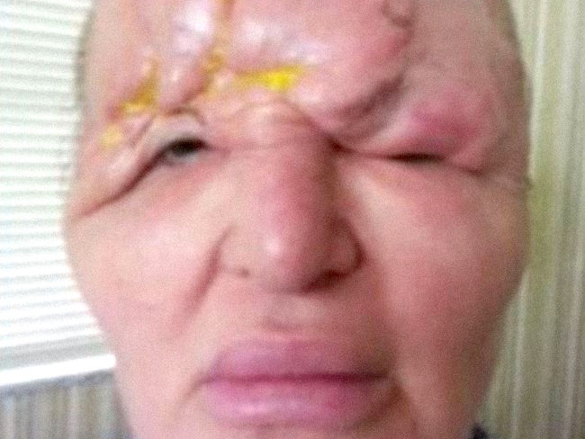 Las inyecciones de bótox desfiguraron la cara a una mujer y la dejaron ciega