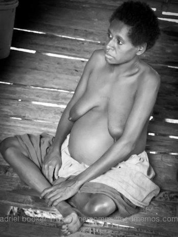 Bokoro before giving birth in Western Province, PNG.