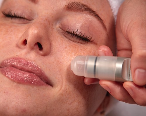 A microdermabrasion Treatment