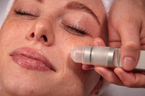 A microdermabrasion Treatment in a close up photograph