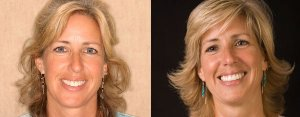 zoom-whitening-tami-before-after