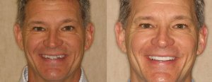 quick smile makeover in Charlotte