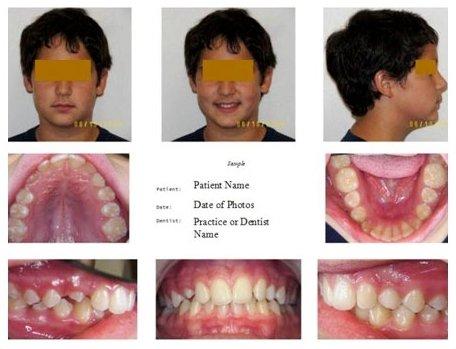 dental digital photography example