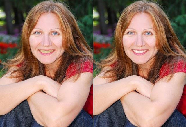 aged teeth adult dentistry ballantyne charlotte nc