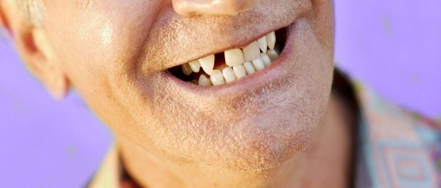 missing teeth adult dentistry ballantyne charlotte nc implant replace