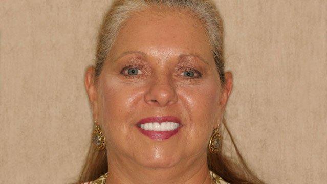 dental-implants-in-charlotte-nc-1