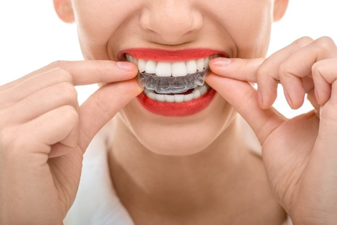 invisalign clear braces dentist charlotte nc ballantyne 28277