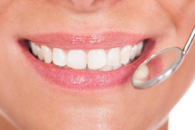 adult-dentistry-charlotte-enamel-loss-smile