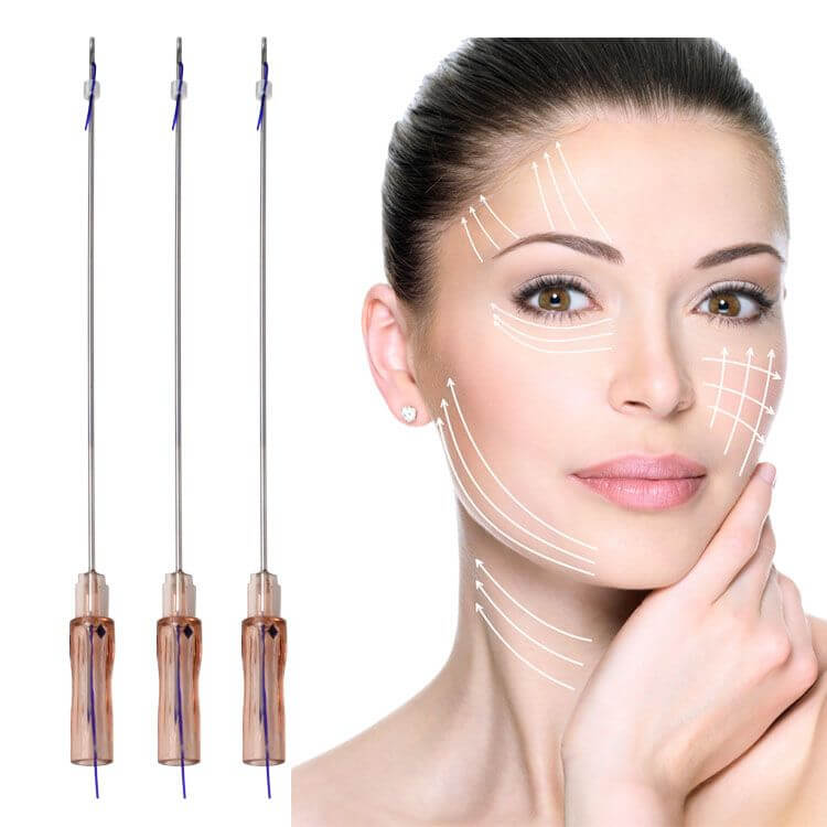 What is PDO Thread Lift?   Advanced Aesthetics   Juvederm