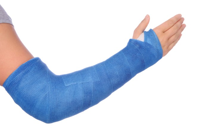 Image result for fracture