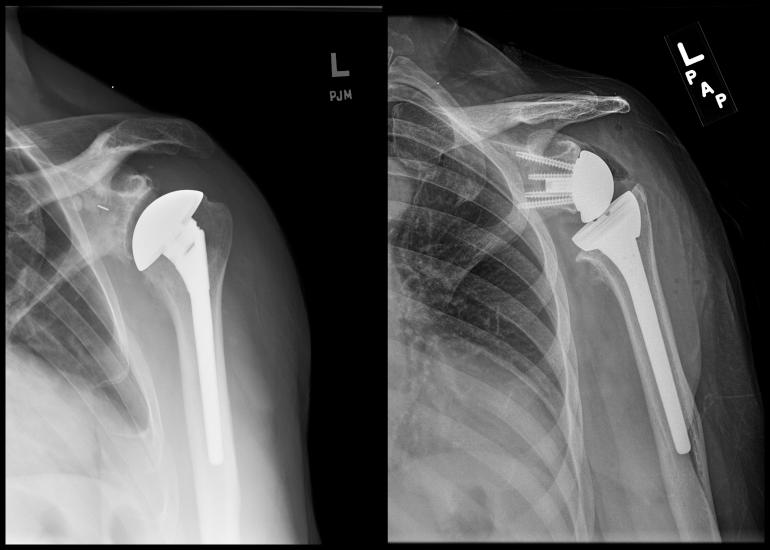 Improving Reverse Total Shoulder Arthroplasty Performance ...
