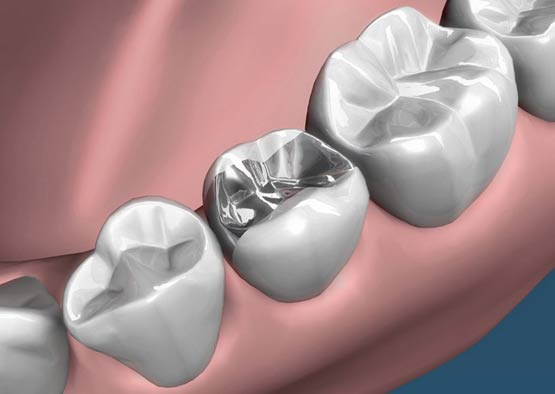 evaluation of techniques for dental and And evaluation in cosmetic dentistry  as techniques and materials  have  examples of the required technique views for dentists and laboratory.