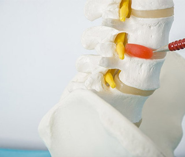 Here Are Some Common Herniated Disc Symptoms