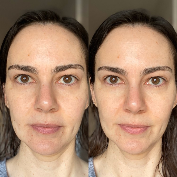 Eye gels before and after
