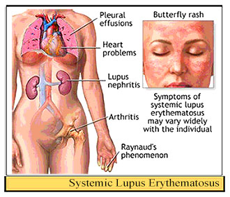 Image result for sle lupus
