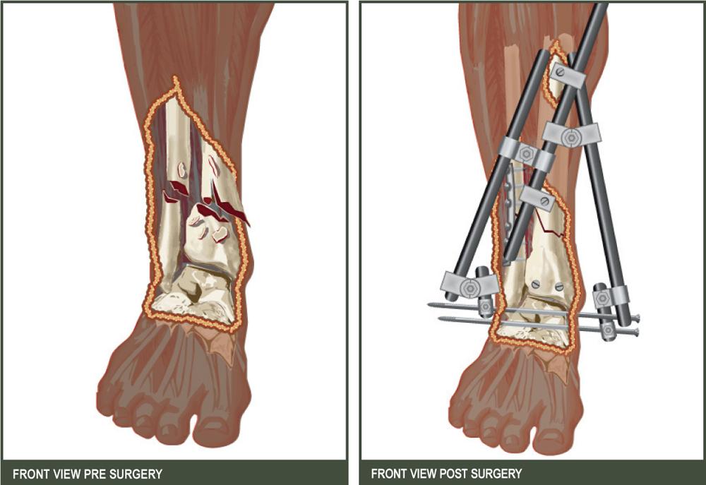 Courtroom graphic medical illustration