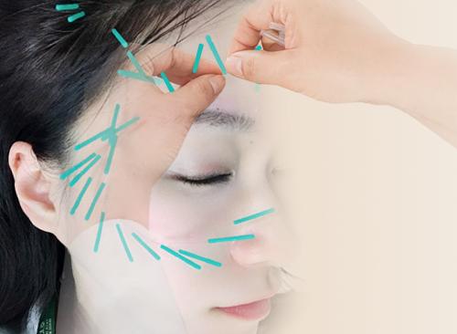 韓式美顏針灸主圖