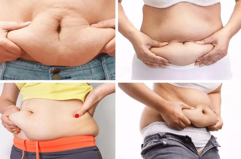 消脂針肚子 (2)