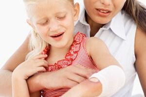 queimadura o que fazer para aliviar a dor nenem