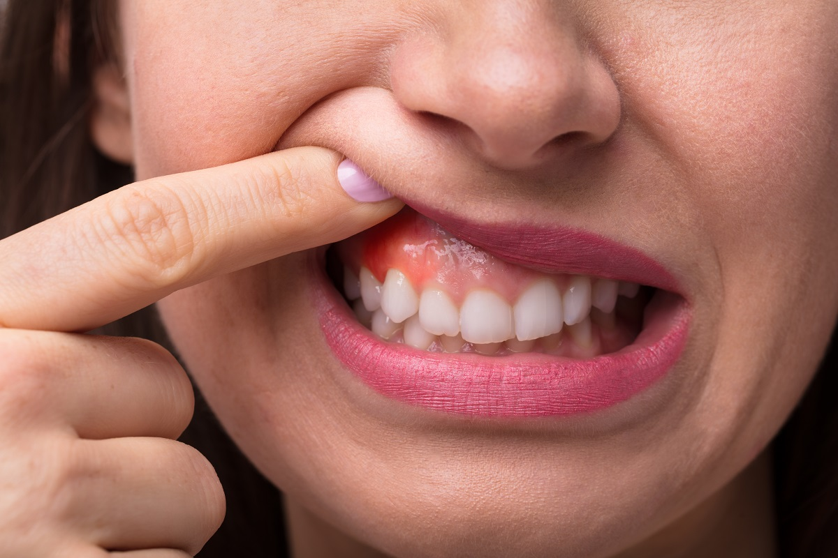 Sore Gums Care from camden dentist - Aesthetic Dental and Denture Clinic
