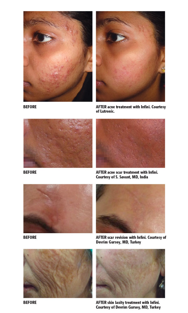 Before and after treatment images