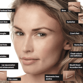 Allergan's Total Face Approach