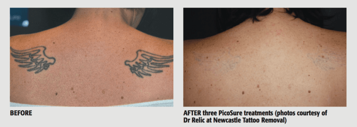 BEFORE & AFTER three PicoSure treatments (photos courtesy of Dr Relic at Newcastle Tattoo Removal)