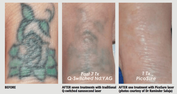 (1) Before (2) AFTER seven treatments with traditional (3) AFTER one treatment with PicoSure laser Q-switched nanosecond laser (photos courtesy of Dr Raminder Saluja)