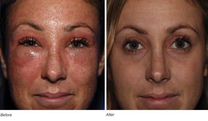 Before and After treatment with Calecim Serum