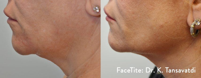 FaceTite before and after