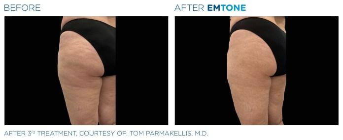 Dr Parmakellis - Emtone_PIC_Ba-card-female-buttock-039_ENAU100