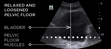 A frontal view of the pelvic floor muscles and bladder using ultrasound imaging.