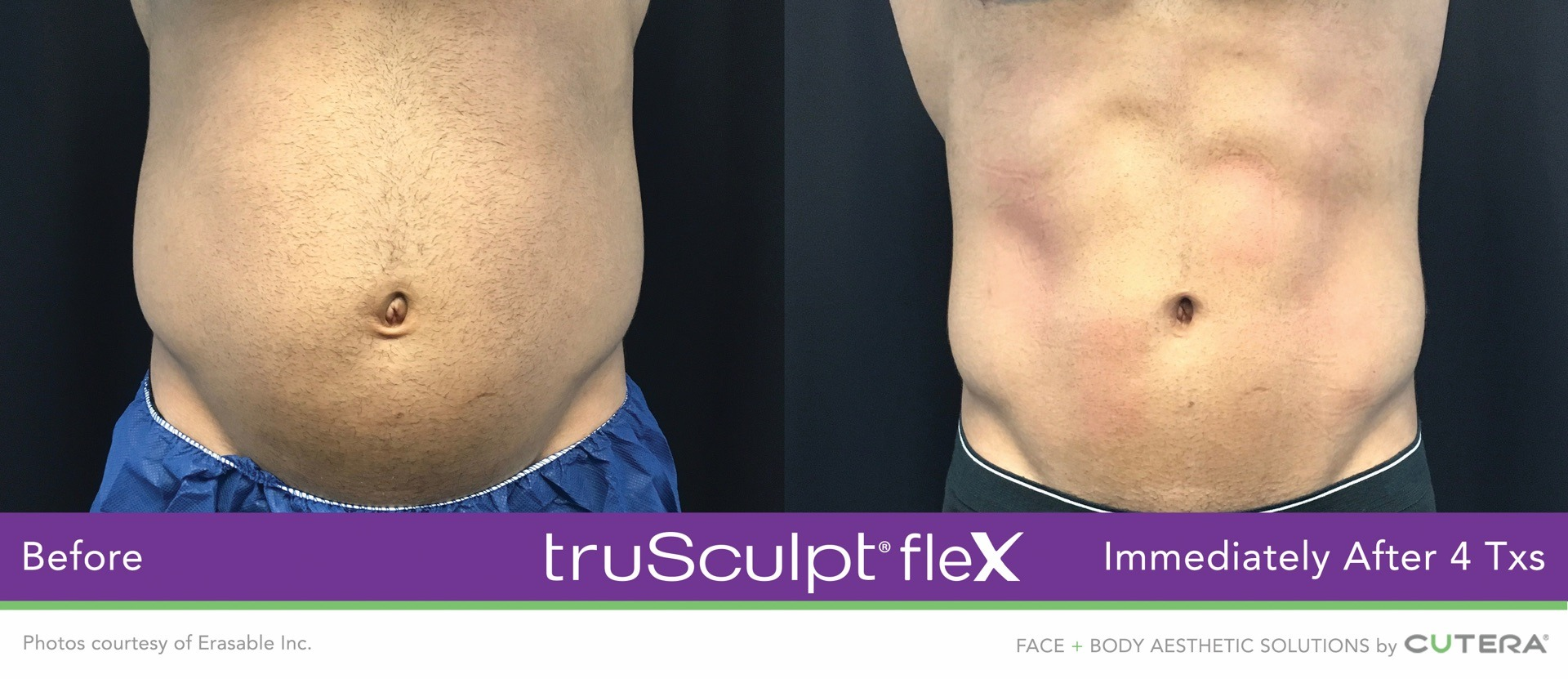 truSculpt Flex Before and After Image by Erasable
