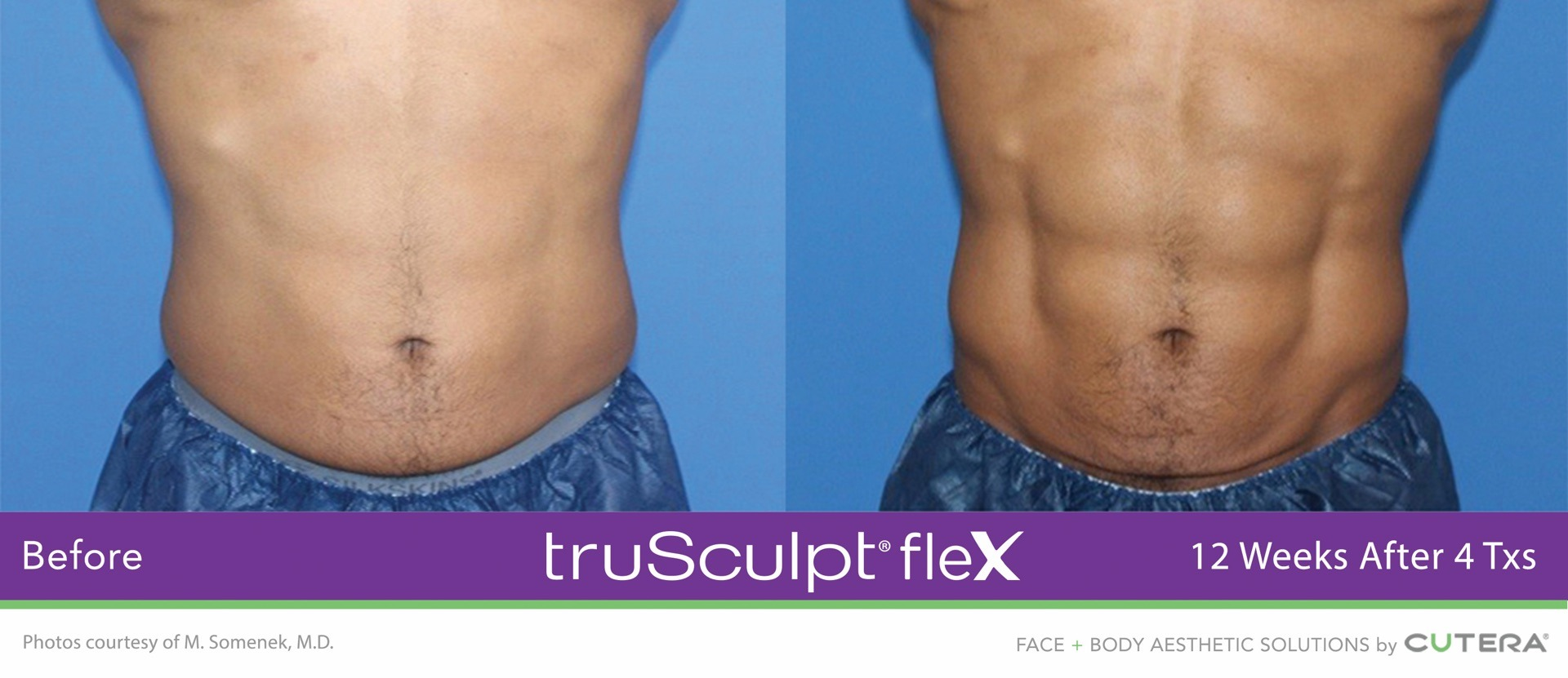 truSculpt Flex Before and After Image by Somenek