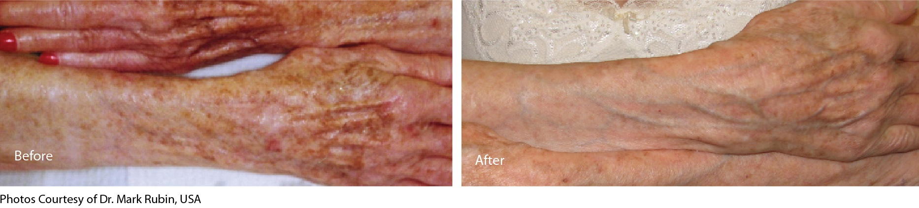 before & 2 months after treatment with eCO2