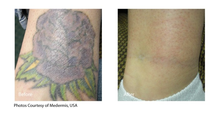 Before and After tattoo removal with Spectra XT