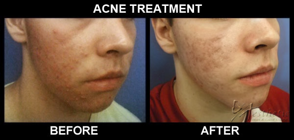 acne_b_n_a_cropped